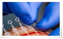 Photo of Cierre quirúrgico de plástico para suturas de piel