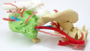 AIJU diseña un biomodelo impreso en 3D para cirugías tumorales complejas