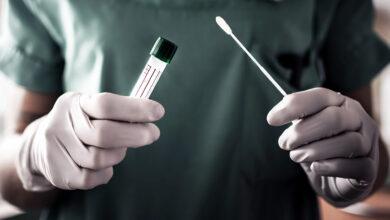 La tecnología de polímeros garantiza la precisión de la prueba rápida de COVID-19